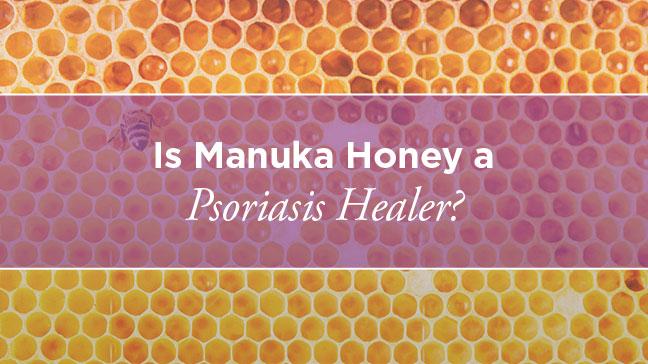 manuka honey for psoriasis