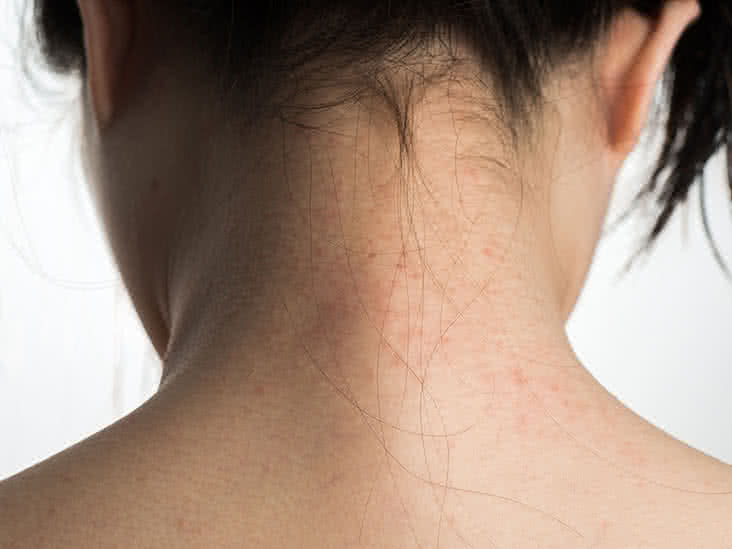 7 Psoriasis Myths You Shouldn't Believe