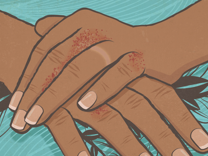 What I Learned About My Psoriasis from My Failed Marriage