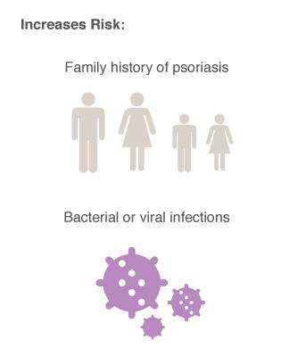 psoriasis risk factors