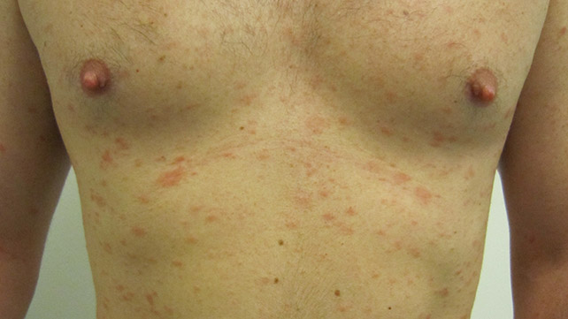 Misdiagnosis of Psoriasis: Know the Facts