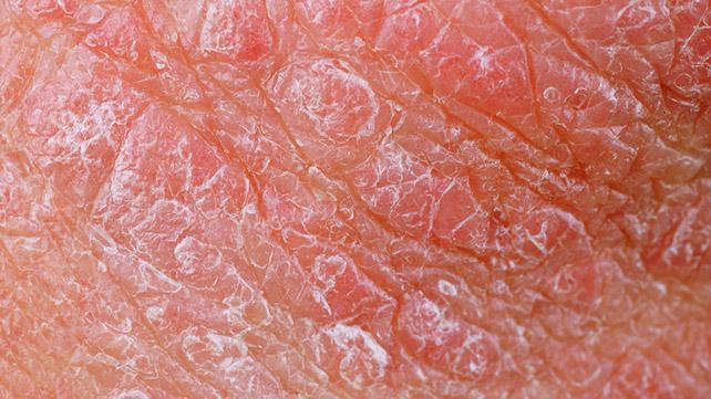 13 photos of plaque psoriasis, Skeleton