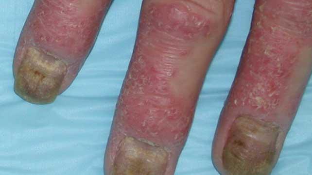 Psoriasis Nail Pitting
