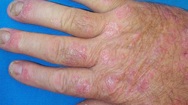 Rash under arms and psoriasis