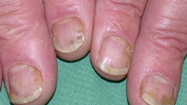where does psoriasis come from