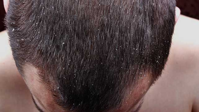 pictures of scalp psoriasis, Skeleton