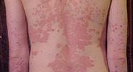 pustular psoriasis