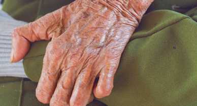 What's the Difference Between Leprosy and Psoriasis?