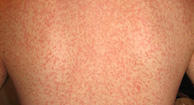 Skin rash, Skin Rash; Causes, Symptom, Diagnosis, Treatment, Rx Harun