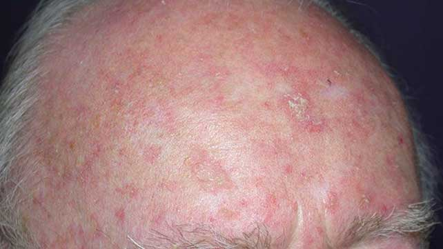 skin cancer symptoms: pictures, types, and more, Skeleton