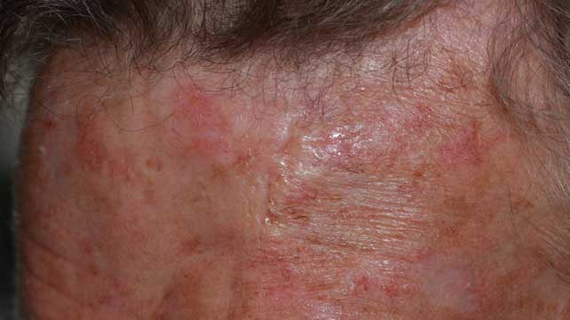 Skin cancer blister pictures — img 1