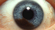Malignant Melanoma of Eye