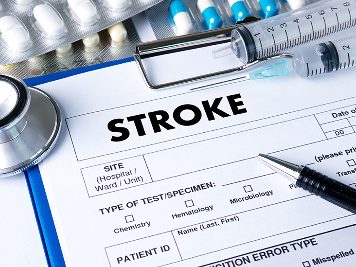 Stroke Medication: Anticoagulants, tPA, Statins, and More