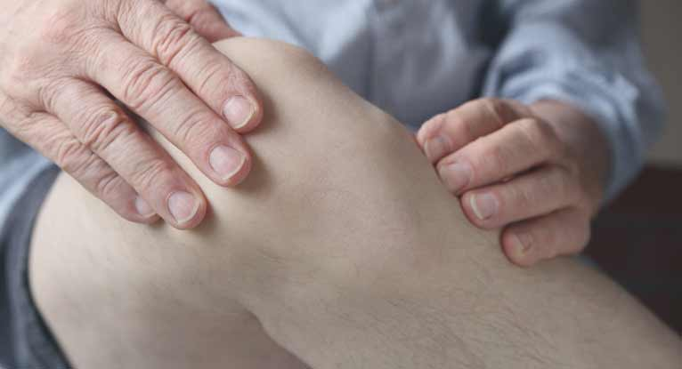 Ulcerative Colitis and Joint Pain