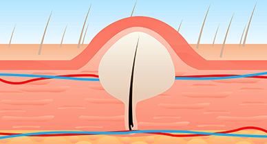 how to make ingrown hairs come to the surface