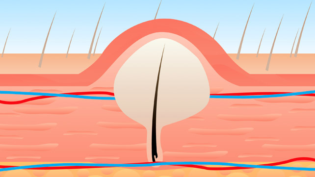 Treating And Preventing Ingrown Pubic Hair