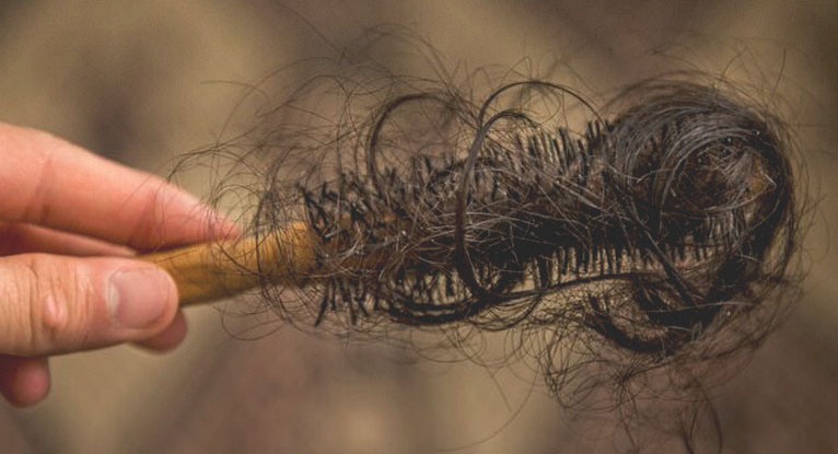 Female Pattern Baldness Causes Treatment And More