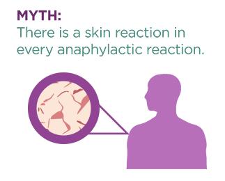 anaphylaxis skin reaction myth