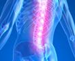 Inflamed spine