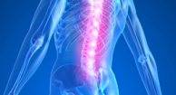 Complications of Ankylosing Spondylitis