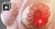 Pictures of Breast Cancer
