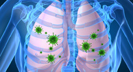 What Are the Risks of Having COPD and Pneumonia?