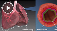 illustration of copd's effect on the airways