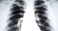 X-ray of a lung stricken with chronic bronchitis.