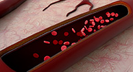 Stents and Blood Clots