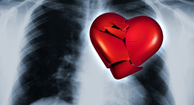 Heart Disease Overview and Types