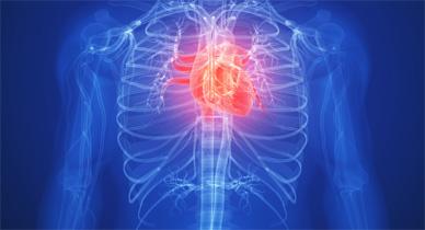 Reversing Atherosclerosis
