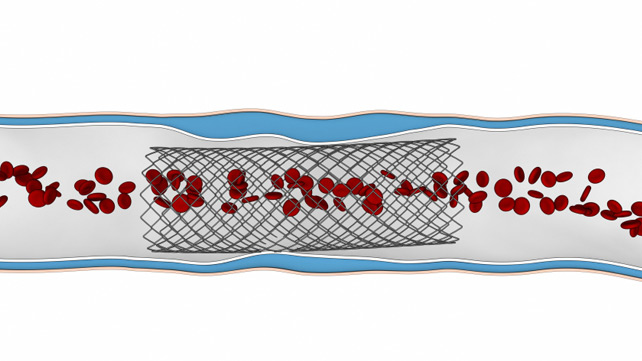 drug-eluting stent