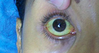 jaundice eye from hepatitis c
