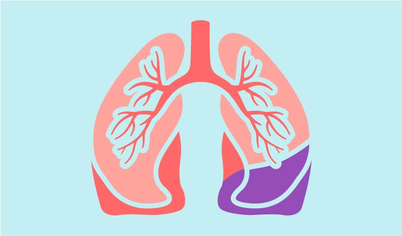 how IPF affects lungs