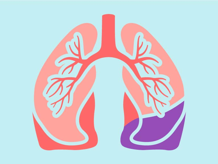 Lung Function, Anatomy & Pictures | Body Maps