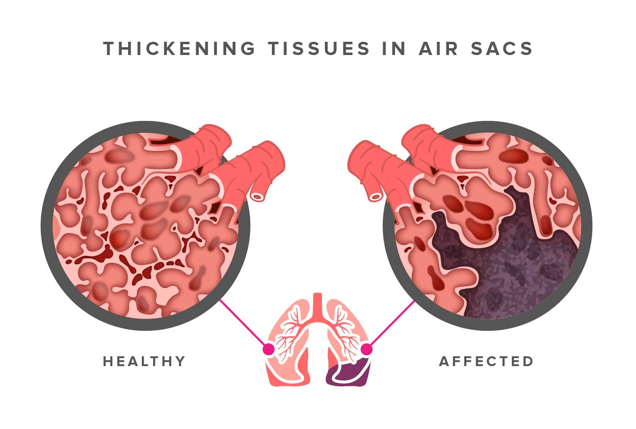thickening tissues in air sacs