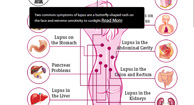 See the Effects of Lupus on the Body