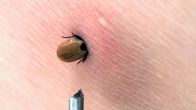 13 Signs and Symptoms of Lyme Disease
