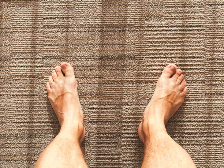 Toenails That Grow Upward Causes And Home Treatments