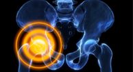 Osteoporosis, Bone Health, and Menopause