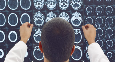 doctor looking at mri of patient with multiple sclerosis