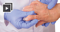 doctor holding patient hands with osteoarthritis