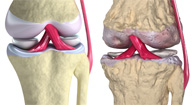 Young healthy knee joint and old arthritic knee joint