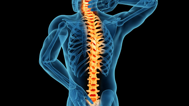 Treating Spinal Stenosis: Exercise, Surgery, and More