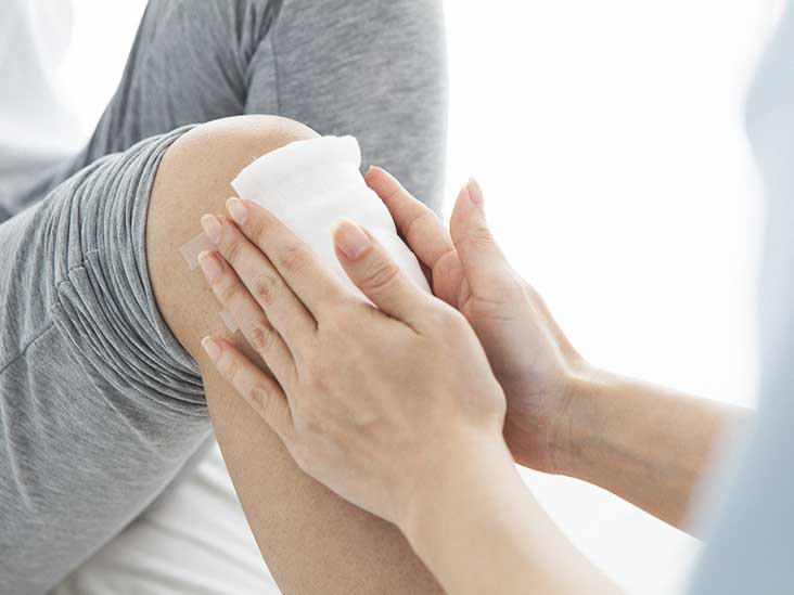 arthritis in knee