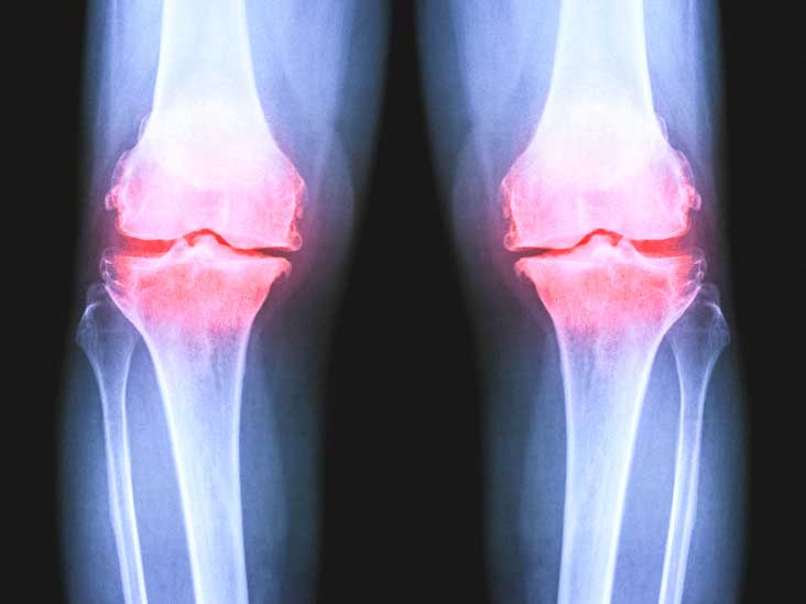 Osteoarthritis of the Knee X-Ray: What to Expect