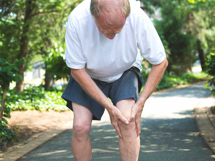 What Is Bilateral Knee Osteoarthritis?