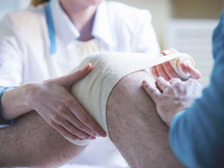 What Is Medial Compartmental Osteoarthritis?
