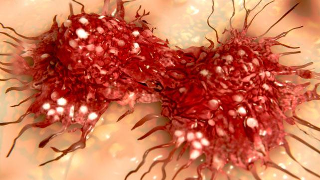 Rare Subtypes of Ovarian Cancer