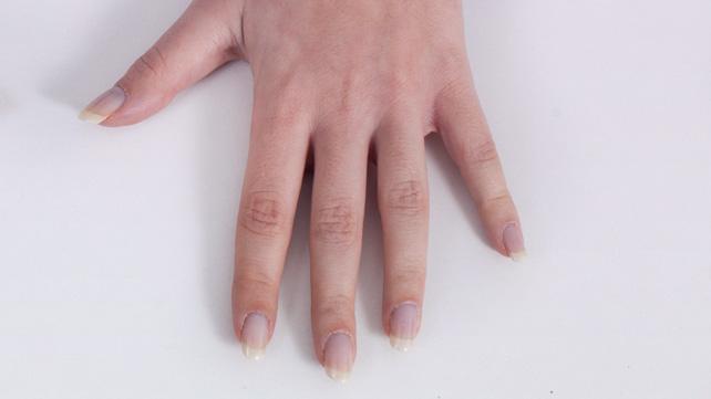 hand stiffness